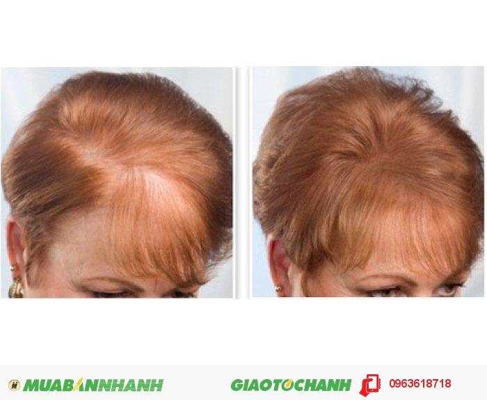 Cách sử dụng: gội đầu thật sạch sau đó bôi NuHair Thinning Hair Serum lên da đầu kết hợp massage nhẹ nhàng từ 3-5 phút, nên sử dụng vào ban đêm để quá trình bảo vệ và phục hồi tóc tốt nhất., 3