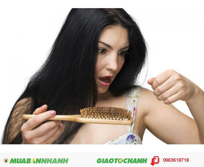 Những ai nên sử dụng NuHair Thinning Hair Serum: Bị hói đầu , tóc ít , muốn tóc dài nhanh - Bị rụng tóc thường xuyên - Bị lão hóa tóc , tóc già nua …, 3