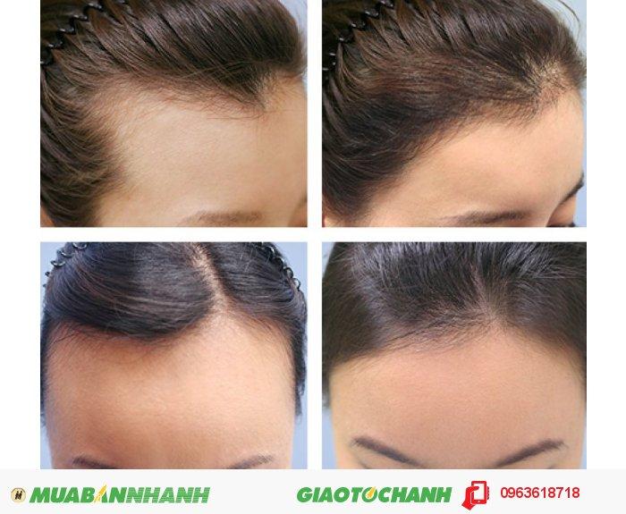 Thuốc mọc tóc NuHair Thinning Hair Serum giúp cải thiện tình trạng tóc bạn như thế nào? Fo-Ti: Kích thích mọc tóc ngăn chặn sự hình thành của DHT và ngăn ngừa chứng rụng tóc. Rosemary (Hương thảo ): Kích thích nang lông tóc cải thiện việc tăng trưởng tóc giúp tóc mọc từ sâu bên trong, giúp khôi phục và sửa chữa các hư tổn của tóc từ sau bên trong. Polygonum multiflorum: chống lão hóa tóc, làm chậm quá trình già nua của tóc, giúp giảm rụng tóc và hỗ trợ kích thích mọc tóc., 2