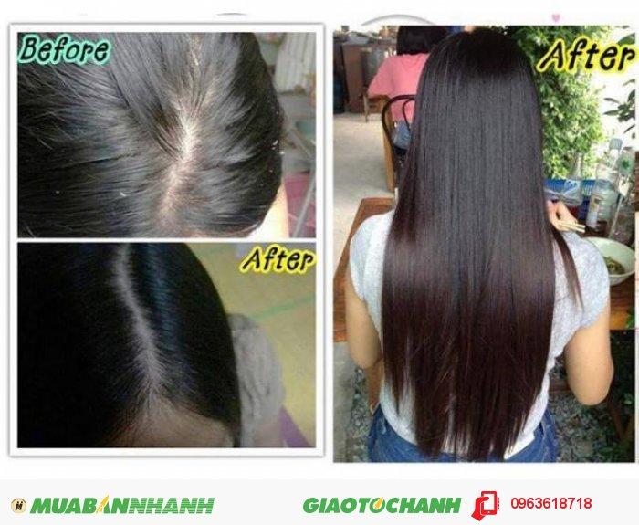 Thuốc mọc tóc NuHair Thinning Hair Serum giúp cải thiện tình trạng tóc bạn nhờ Fo-Ti: Kích thích mọc tóc ngăn chặn sự hình thành của DHT và ngăn ngừa chứng rụng tóc. Rosemary ( Hương thảo ): Kích thích nang lông tóc cải thiện việc tăng trưởng tóc giúp tóc mọc từ sâu bên trong. Giúp khôi phục và sửa chữa các hư tổn của tóc từ sau bên trong., 2