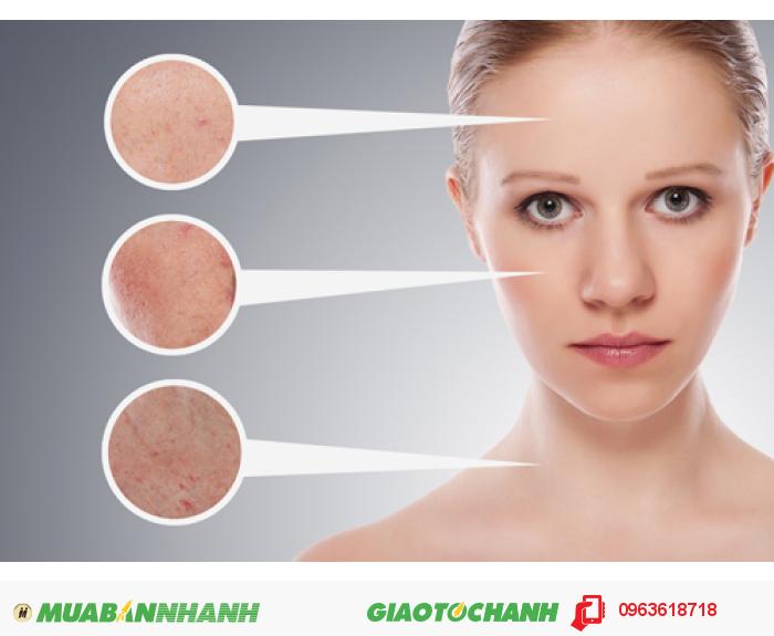 Ngoài ra, sản phẩm còn có thể giải quyết các vấn đề về nám da, tàn nhang, đồi mồi nhờ vào tính năng kìm hãm sự tổng hợp hắc tố da. Làm trắng da và nuôi dưỡng cho da đẹp mịn màng do ức chế enzyme làm điều kiện thúc đẩy quá trình hình thành sắc tố. Collagen cá 30.000mg hỗ trợ làm lành vết thương nhanh chóng, tăng cường lưu thông máu và bảo vệ xương chắc khỏe., 4