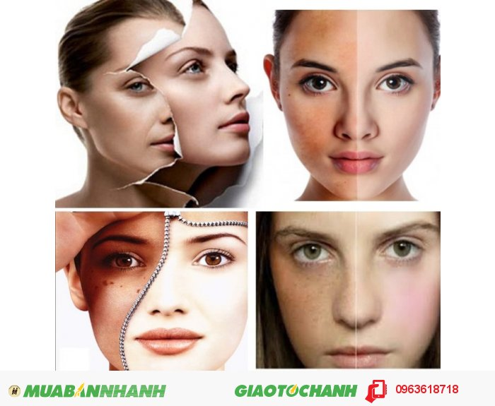 Những người quan tâm đến vẻ đẹp làn da, muốn có một làn da trắng mịn. Những người bị các vết thương trên cơ thể. Những người gặp các vấn đề về nám da, tàn nhang, đồi mồi. Những người muốn hồi phục sức khỏe, cải thiện tình trạng cơ thể nên mua sản phẩm này để sử dụng., 4