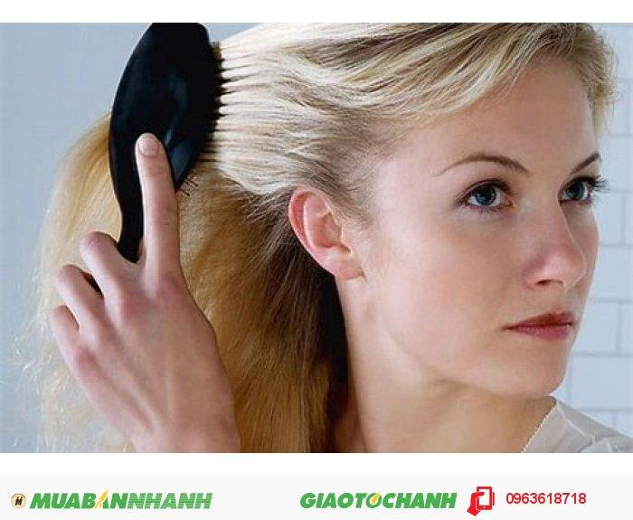 Ở độ tuổi trung niên ở cả quý ông và quý bà, tóc rụng là nỗi lo lớn nhất. Nhưng giờ đây khi sở hữu serum NuHair Thinning Hair bạn sẽ không còn phải lo lắng về điều này nữa., 2