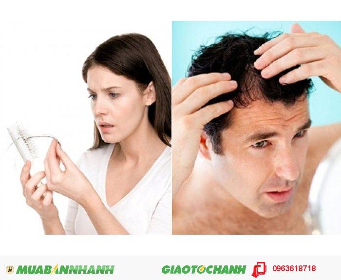Tác dụng ưu việt của thuốc mọc tóc Hair Revitalash là làm khỏe tóc ngăn gây rụng: các BioPeptin Complex chiết xuất trà xanh giàu panthenol và peptide với công nghệ độc quyền giúp nuôi dưỡng và làm khỏe và dày tóc; chống lão hóa và bảo vệ tóc: nhân sâm Panax với chiết xuất cao chất chống oxy hóa và vitamin B, giúp bảo vệ, nuôi dưỡng, và đem lại sức sống cho tóc. Sản phẩm phù hợp cho cả nam và nữ., 2