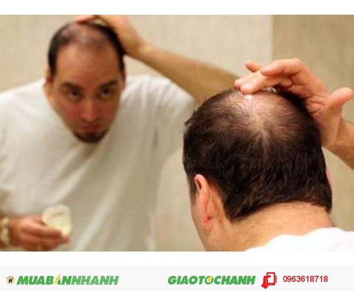 Sản phẩm phù hợp với những người bị hói đầu lâu năm, những người muốn kích thích tóc mọc nhanh, những người rụng tóc nặng và những người muốn bảo vệ tóc chắc khỏe hơn., 4