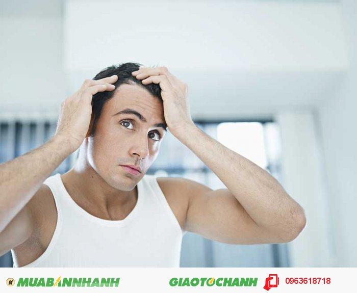 Sản phẩm phù hợp cho cả đấng mày râu, giúp các quý ông thêm tự tin và lịch lãm, không còn quá lo lắng do rụng tóc, hói đầu nữa., 4