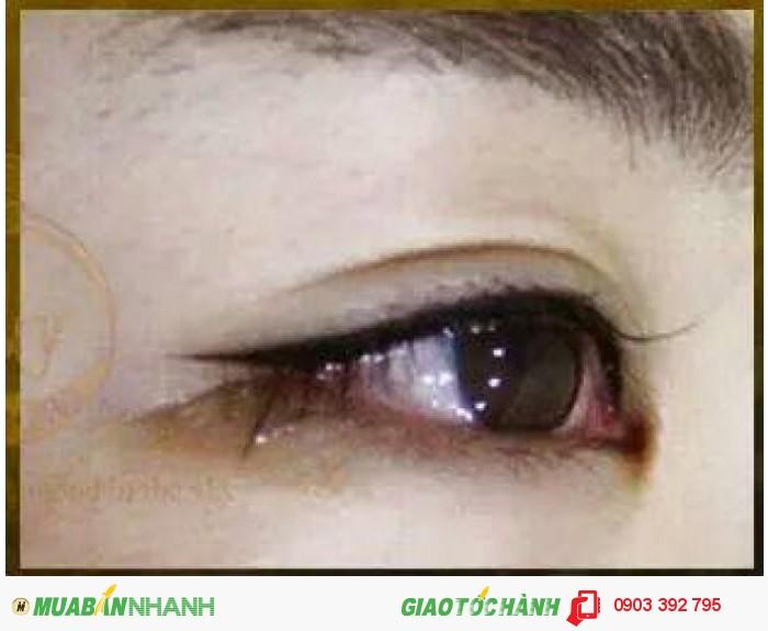 Phun mắt mí mắt có đau không ? spa ngoc0