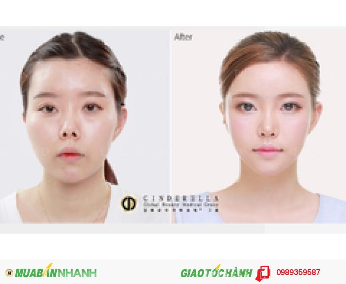Thẩm mỹ mũi uy tín Hàn Quốc