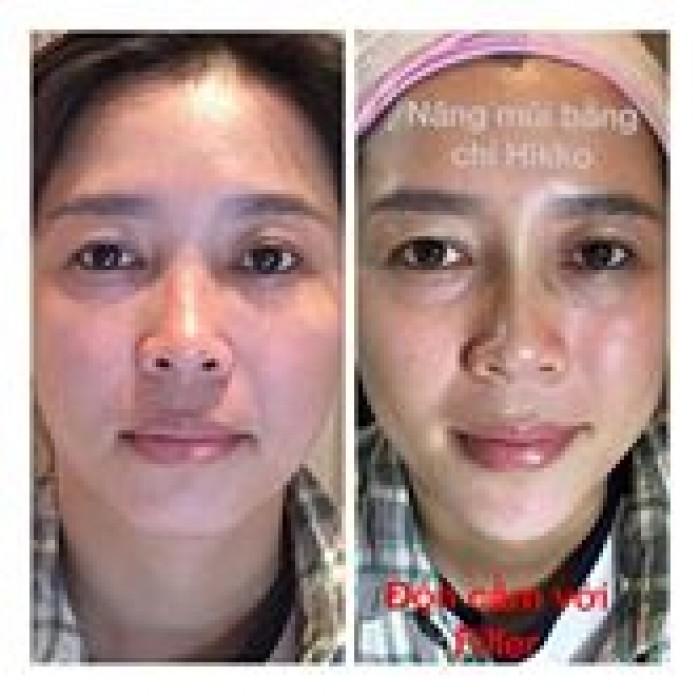 Nâng cơ mặt trẻ hoá da mặt1