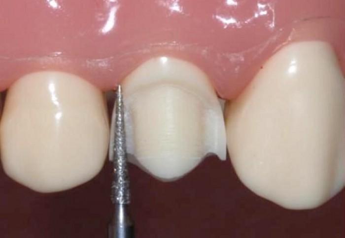 Giải pháp cho răng cửa to và dài