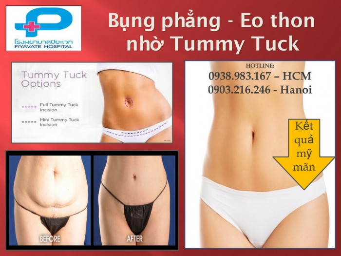 Hút mỡ bụng  - Tummy Tuck - Dịch vụ trọn gói – Giá cực hấp dẫn
