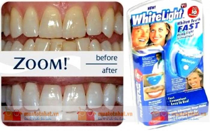 Dụng cụ tẩy trắng răng White Light .2