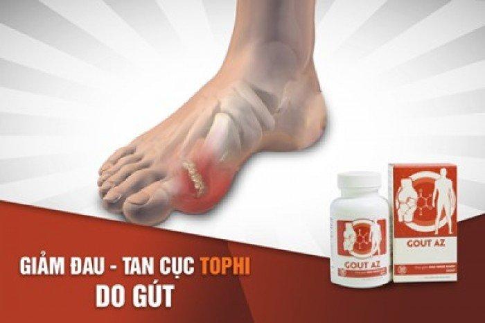 Gout AZ hỗ trợ giảm biến chứng do hạt tophi ở bệnh Gout