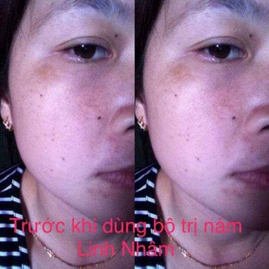 Kem trị nám Linh Nhâm1