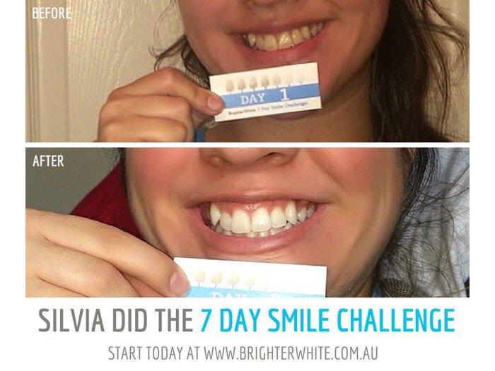 Bộ trắng răng Brighter white - Australia