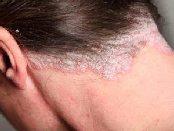 Trị gàu và nấm da đầu