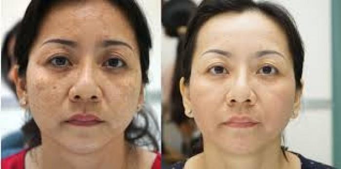 Điều trị nám, đốm nâu, tàn nhang sắc tố da bằng công nghệ cao giảm sắc tố da 60 phút0