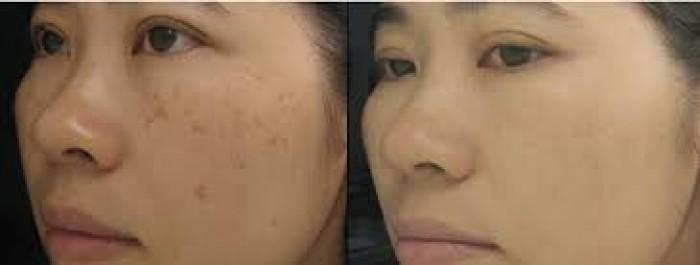 Điều trị nám, đốm nâu, tàn nhang sắc tố da không đều màu bằng phương pháp lăn kim kết hợp vói Cao Vua Hồng Sâm0