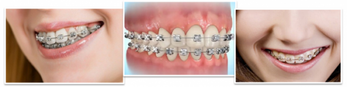 Niềng răng mắc cài kim loại cho răng hô, vẩu, móm