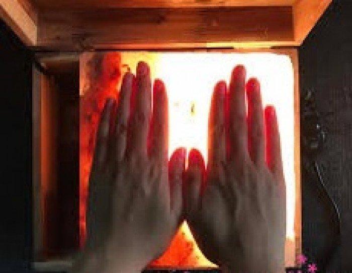 Hơ ấm bàn tay trị bệnh ra mồ hôi tay