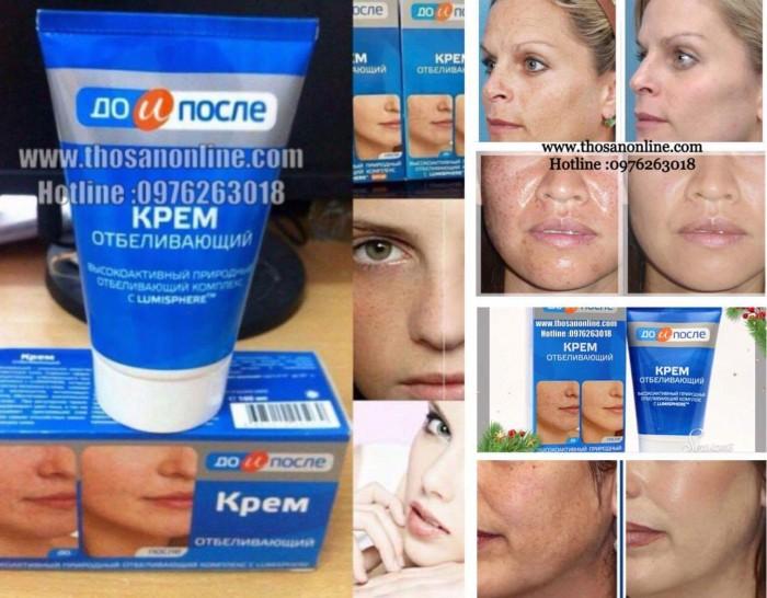 – Xóa tan nỗi lo nám da với Kpem kem đặt trị nám của Nga ! Nám da, sạm da, tàn nhang là tình trạng gia tăng hắc sắc tố melanin ở trên da. – Nám da là một trong những thủ phạm làm cho giảm sắc đẹp của phụ nữ. Có khoảng 15% con số phụ nữ ở độ tuổi 28-30 bắt đầu có hiện tượng nám nhẹ, 40% phụ nữ trên 30 tuổi bị nám ở cấp độ nặng