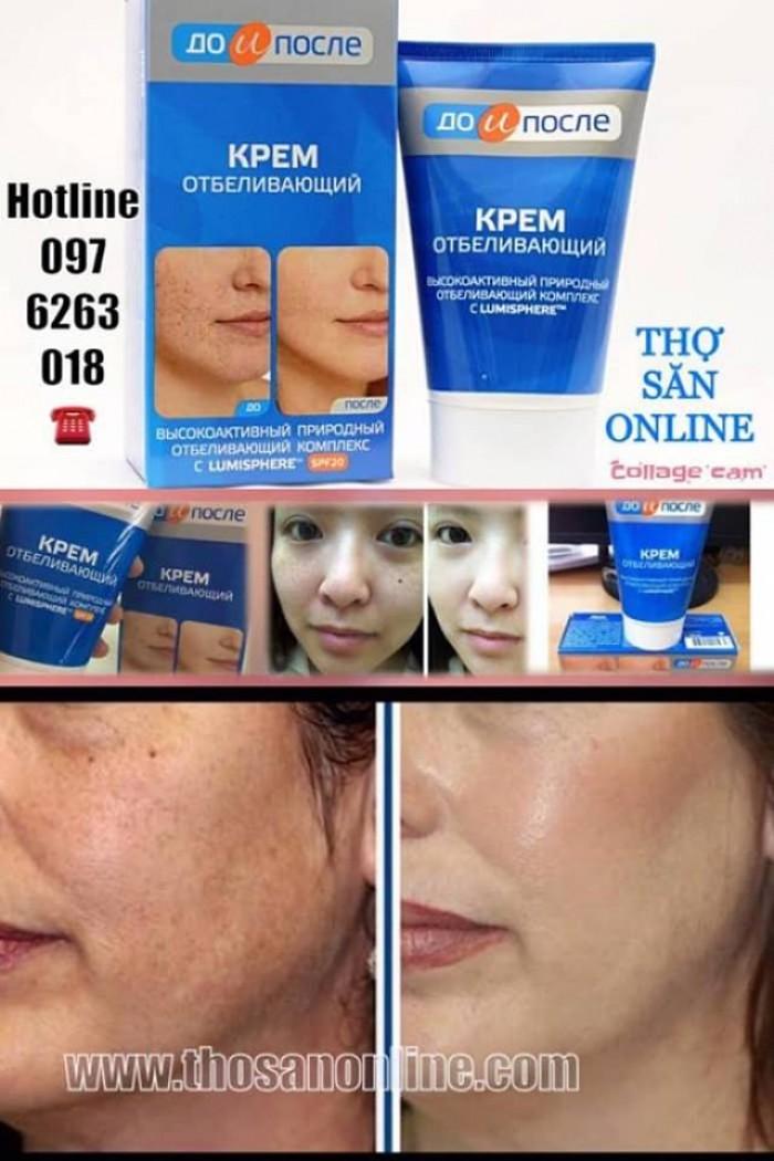 – Làm chậm quá trình tổng hợp melanin trong da, làm giảm sự phát triển của hắc tố bào mới, thu hẹp và loại bỏ các điểm bị nám, đồi mồi, ngăn ngừa sự tái phát, kích thích chức năng tế bào giúp mang đến một làn da sáng, trắng mịn