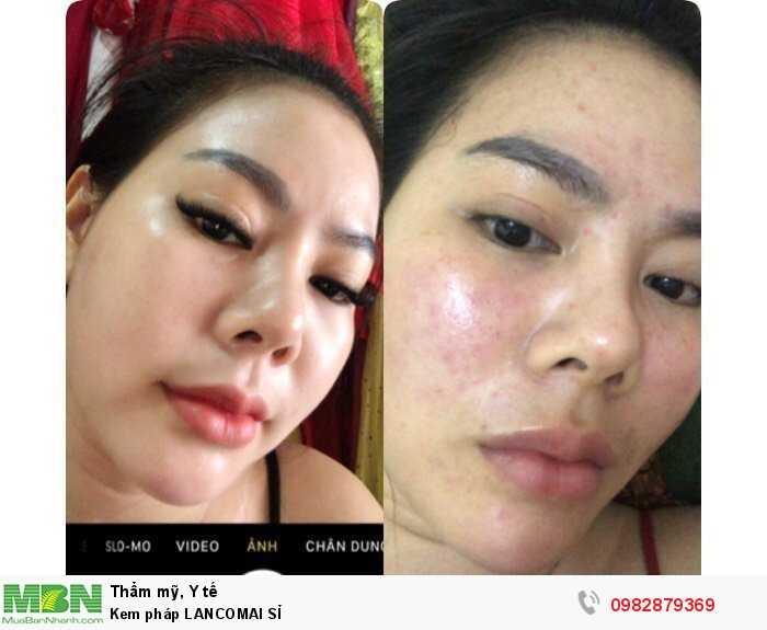 Kem Pháp LANCOMAI SỈ mỹ phẩm kem dưỡng da mặt, dưỡng ẩm trị mụn0