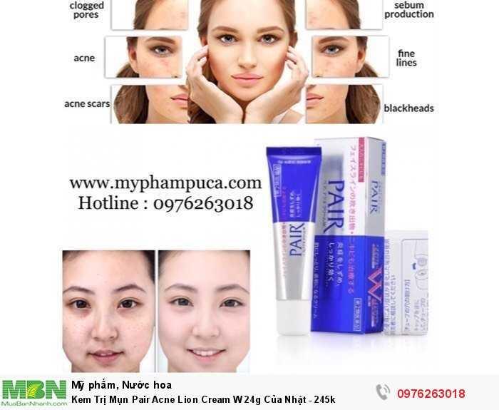 Kem Trị Mụn Pair Acne Lion Cream W 24g Của Nhật - 245k
