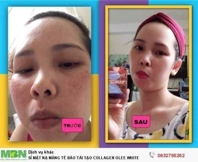 Sỉ 3 Mặt Nạ Collagen Olee White
