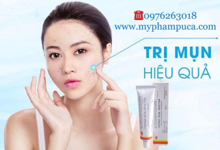 Kem Trị Mụn Lưu Huỳnh Cephar Nga 30g