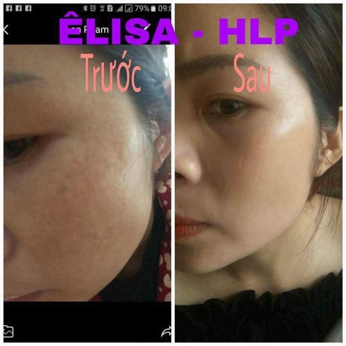 Viên uống nội tiết tố nữ Elisa HLP Nhật Bản3