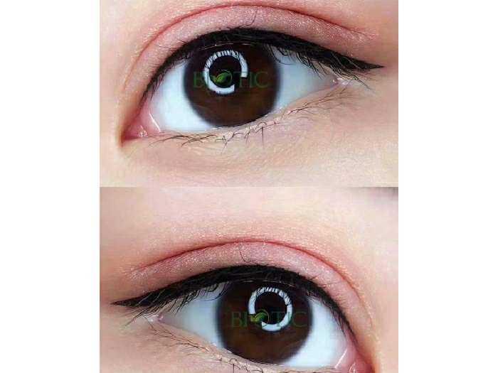Phun mắt mí mắt có đau không ? spa ngoc3