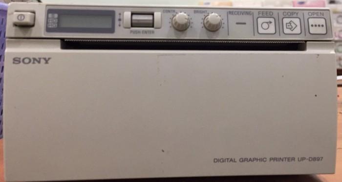 Máy in siêu âm Sony trắng đen0