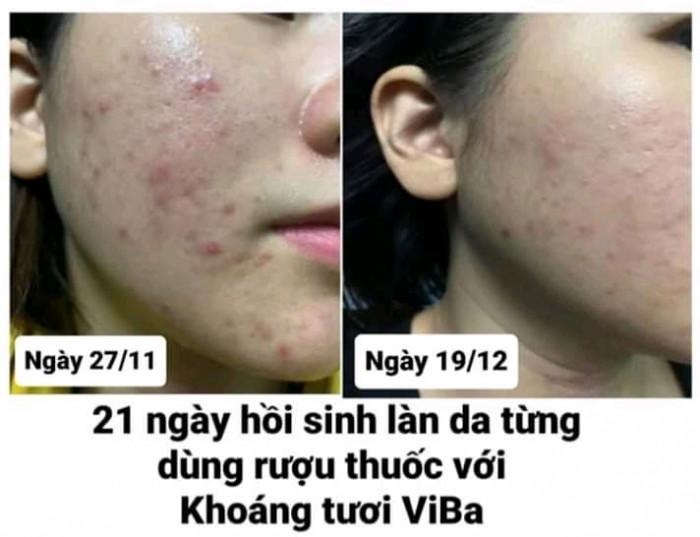 Mua quà tặng 8/3 Mỹ phẩm Skincare tự nhiên Khoáng Tươi Viba2
