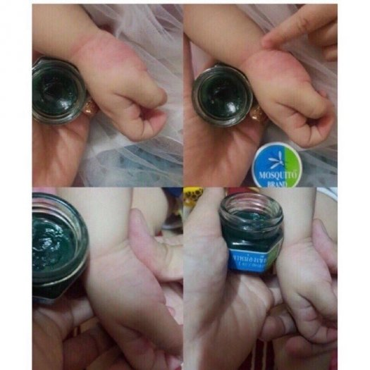 Dầu thoa trị muỗi đốt Mosquito Balm Thái Lan cho bé0