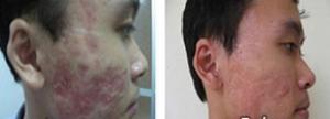 Trị sẹo lõm , sẹo lõm hiệu quả nhất 2015 cam kết an toàn