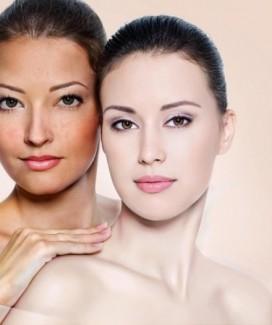 Điều trị nám dermajector -cách trị nám da hiệu quả