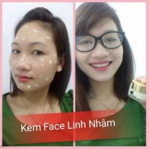 Kem Face Linh Nhâm