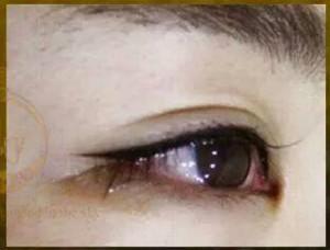 Phun mắt mí mắt có đau không ? spa ngoc