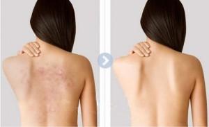 Điều trị mụn thâm mặt và lưng hiệu quả cao nhất