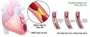 Những điều cần biết khi đặt stent động mạch