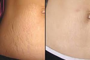 Điều trị rạn da bụng sau khi sanh
