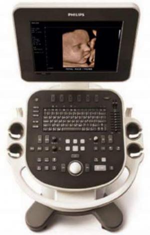 Máy siêu âm 4D - Philips