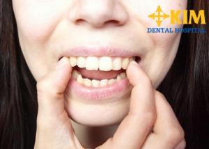 Cách chữa trị dứt điểm Các nguyên nhân gây răng vẩu