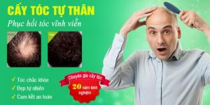 Công nghệ cấy tóc tự thân dành cho cả nam giới và nữ giới