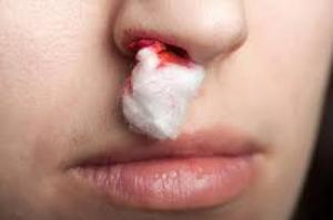 Chảy máu cam là một trong các biểu hiện của xuất huyết giảm tiểu cầu. Khi có các biểu hiện như có các nốt xuất huyết, chảy máu cam, chảy máu chân răng... người bị xuất huyết nên chú ý kiểm tra chỉ số tiểu cầu để có phát hiện kịp thời