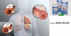 Pulmasol - thảo dược hỗ trợ điều trị hen...