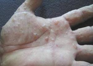 Đặc trị nấm da Trần Mười