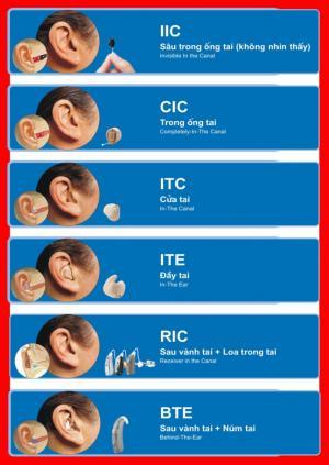 Các dạng máy trợ thính hiện nay