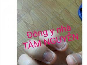 Cho người bị nấm móng tay